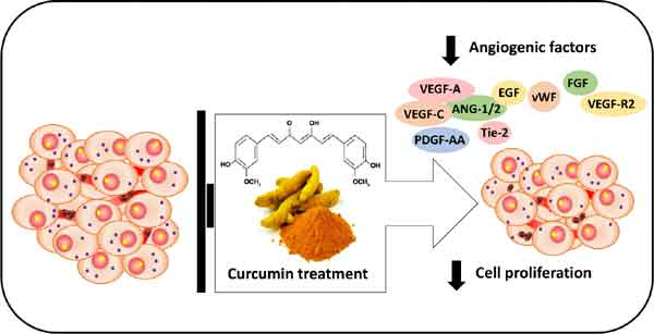 cancer Curcumin breast