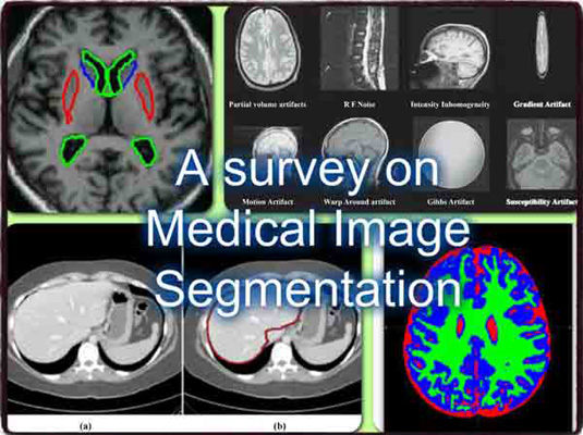 image segmentation thesis doc Abstract: semantic image segmentation is an important computer vision task that is difficult because it consists of both recognition and segmentation the task is often cast as a structured output problem on an exponentially large output-space, which is typically modeled by a discrete probabilistic model.